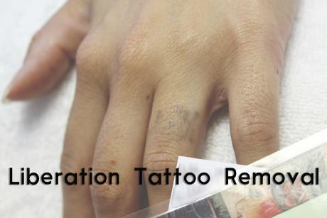 Liberation tattoo removal laser removal for Tattoo removal business