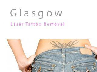 Glasgow tattoo removal laser removal for Tattoo removal business